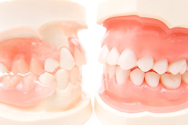 そもそも、歯並びが悪いとどうなるの?